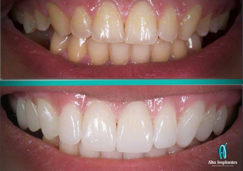 f3a807445b646 lentes de contato preço - Clínica Ideal