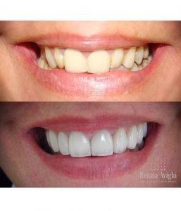 18c5e876b7d32 preço lente de contato dental - Clínica Ideal