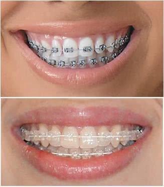 aparelho de dente preço
