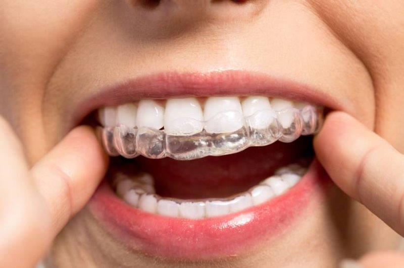 aparelho dentario transparente