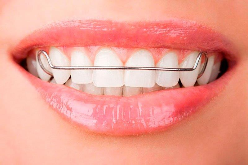 aparelho odontologico