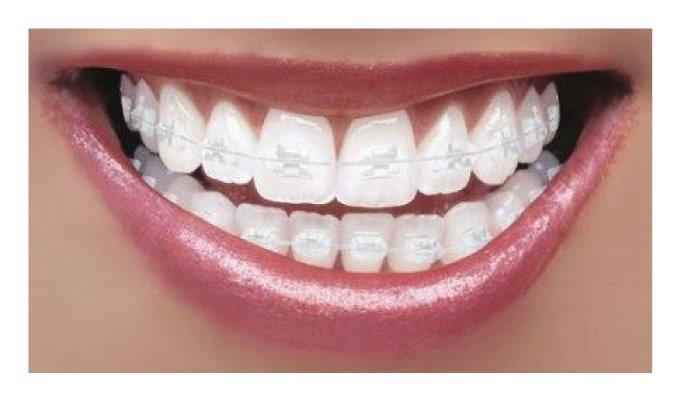 aparelho odontológico transparente
