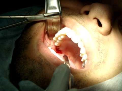 cirurgia do siso