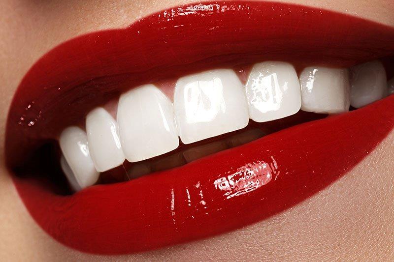 faceta dental preço