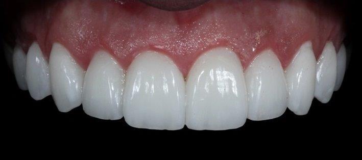 lente contato dental