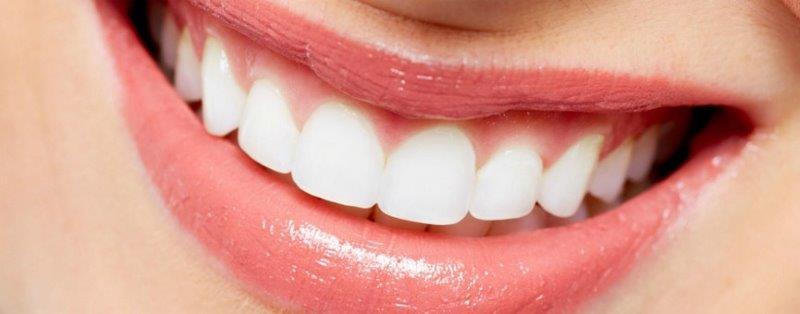 lente de contato dental preço