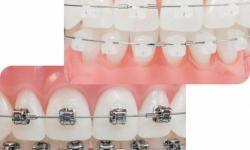 aparelho ortodontico invisivel