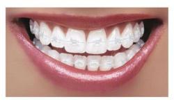 aparelho ortodontico transparente