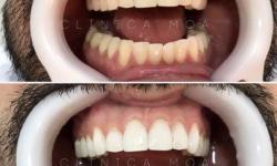 clareamento dental a laser