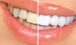 clareamento nos dentes