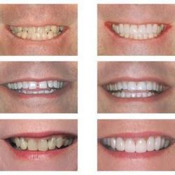 preço de lente de contato dental