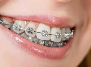 aparelho dental