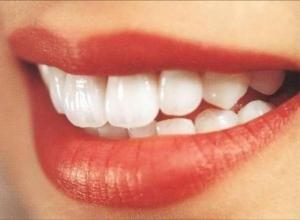 clareamento dentário preço