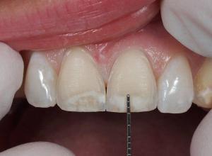 faceta dental