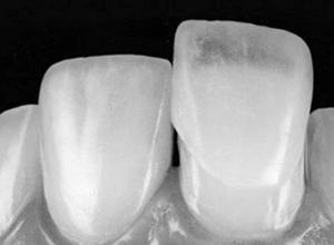faceta dentaria