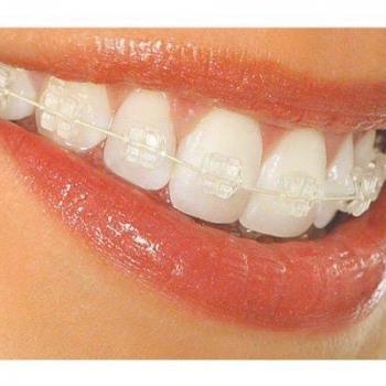 aparelho dentario de porcelana