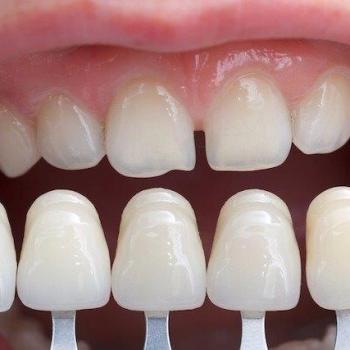 faceta nos dentes