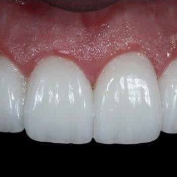 lente dental preço