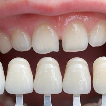 lente dentaria